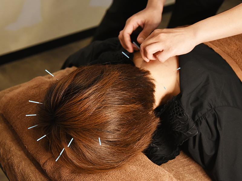 美容鍼施術(美髪鍼)